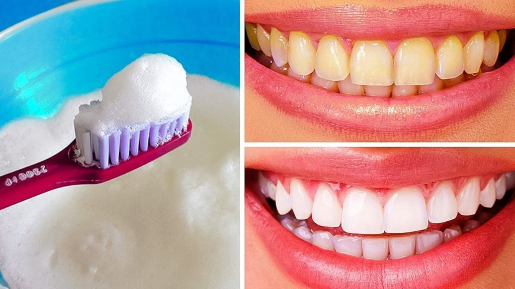 отбеливаем содой зубы