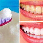Желтые зубы станут белоснежными, 2 проверенных копеечных способа